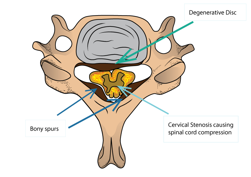 Cervical Stenosis and Cervical Myelopathy