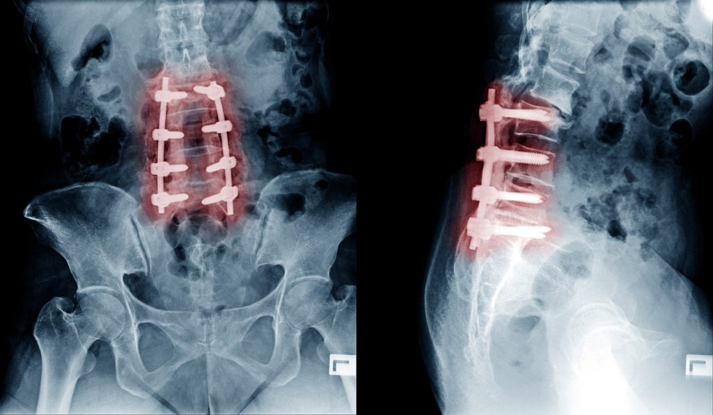 Complex Spinal Conditions