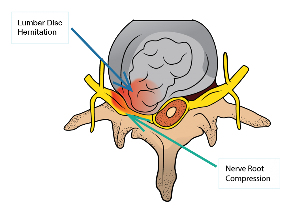 Lumbar Disc Herniation and Sciatica