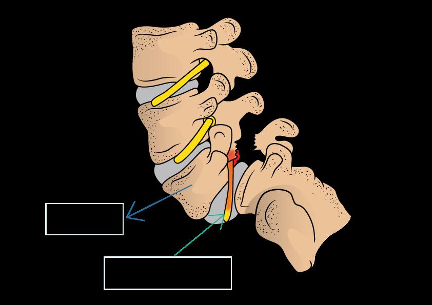 Pars Fracture and Spondylolisthesis